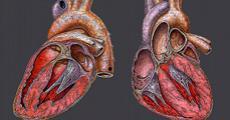 مجموعه داده احتمال حمله دوم قلبی در بیماران مبتلا به حملات قلبی