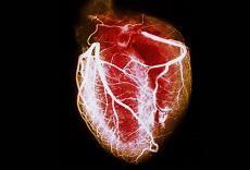 مجموعه داده عوامل خطر زا در حملات قلبی