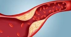 مجموعه داده رابطه وزن و جنسیت با کلسترول خون